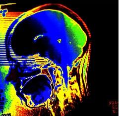 Do you find my brain? - Auf der Suche nach mei...